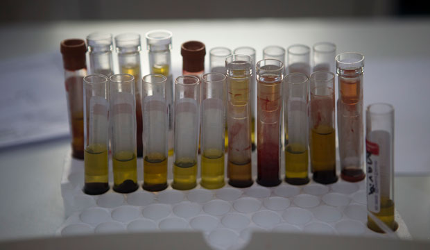 Blood samples from pregnant women wait to be analyzed for the Zika virus at a hospital in Guatemala City on February 2, 2016.